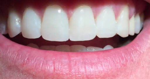 patient 5 teeth after